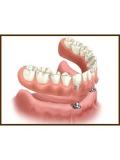 Overdentures - Hospident Cancun Dental Service - All Specialties in one place