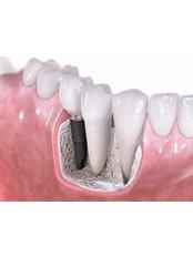 Bone Graft - Klinikken Dental Center