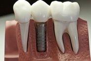 Cabo Dental