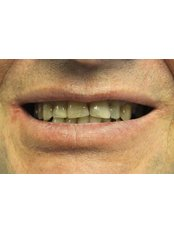 Dental Crowns - Nava Dental Care