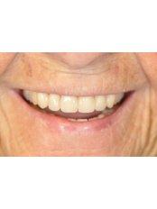 Dentures - Nava Dental Care