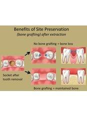 Bone Graft - Reny Dental