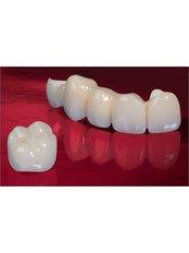 Dental Bridges - Reny Dental