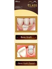 Bone Graft  - Sani Dental Group Platinum