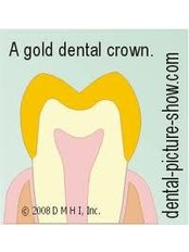 Gold Crown - Simply Dental