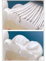 Dental Sealant - Simply Dental