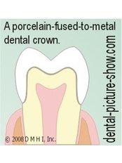 PFM Crown - Simply Dental