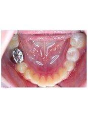 Stainless Steel Crown - Simply Dental