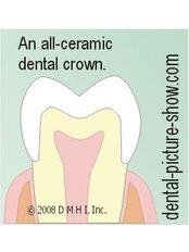 Porcelain Crown - Simply Dental
