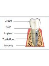 Dental Implants - Simply Dental