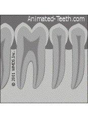 Dental X-Ray - Simply Dental