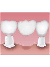 Dental Bridges - Simply Dental