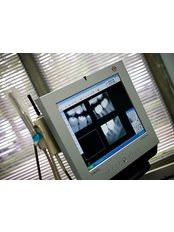 Digital Dental X-Ray - Simply Dental