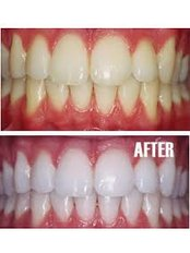 Teeth Whitening - Solis Oral Care Center