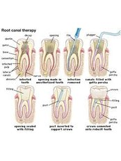 Root canals - Solis Oral Care Center