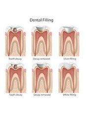 Fillings - Solis Oral Care Center