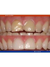 Dental Bonding - Dr. Javier Saldivar DDS.