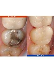 Dentist Consultation - Dr. Javier Saldivar DDS.