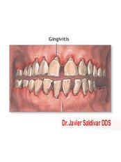 Bad Breath Treatment - Dr. Javier Saldivar DDS.