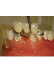 Dental Bridges - Dr. Javier Saldivar DDS.