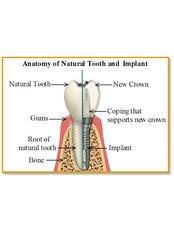 Snap On Upper 4 implants - Unidental Matamoros