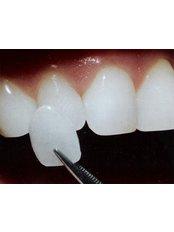 Acrylic Fixed Denture Upper or Lower  - Unidental Matamoros
