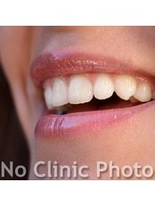 Veneers can give you a perfect smile! - Mexican Dental Vacation