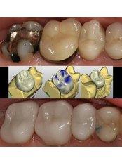 CAD/CAM Dental Restorations - Evolution Dental Care