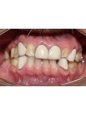 Grupo Interdisciplinario Odontológico - Before Orthodontic treatment and Oral Rehabilitation