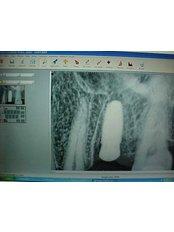 Digital Dental X-Ray - B&C Dental Care Dr.Carlos Suárez