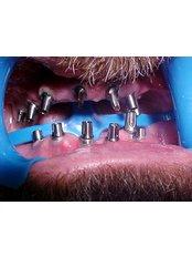 Dental Implants - B&C Dental Care Dr.Carlos Suárez