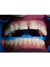 Porcelain Veneers - B&C Dental Care Dr.Carlos Suárez