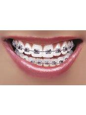 Metal Braces - Dental Laser Nogales