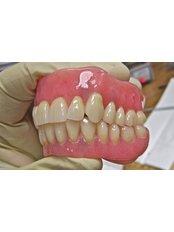Dentures - Dental Laser Nogales