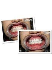 Laser Teeth Whitening - Dental Laser Nogales