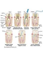 Root canals - Dental Laser Nogales