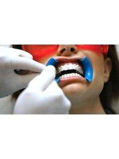 Zoom! Teeth Whitening - Dental Laser Nogales