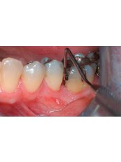 Scaling and Root Planing - Dental Laser Nogales