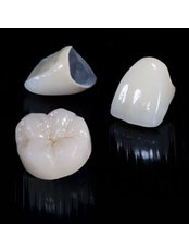 PFM Crown - Dental Laser Nogales