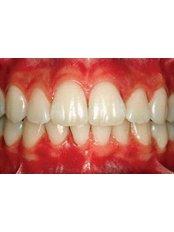 Periodontitis Treatment - Dental Laser Nogales