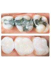 Fillings - Dental Laser Nogales