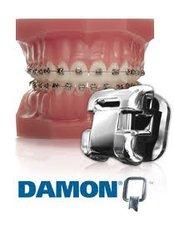 Damon™ Braces - Dental Laser Nogales