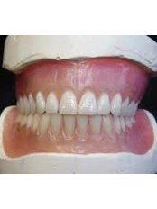 Acrylic Dentures - Dental Laser Nogales