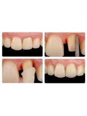 Dental Crowns - Dental Line