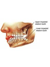Wisdom Tooth Extraction - Dental Line