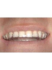 Night Guard - Dental Line
