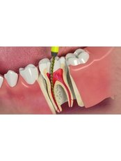 Root Canals - Dental Line