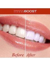 Teeth Whitening - Dental Line