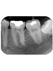 Dental X-Ray - Dental Line