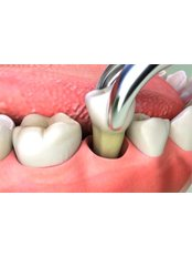 Extractions - Dental Line